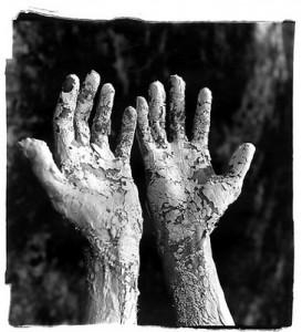 Leprous-Hands